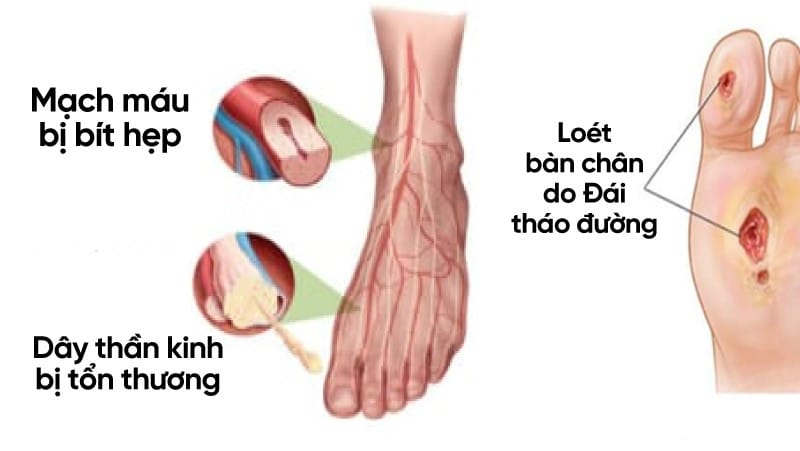 Dai Cuong Ve Loet Tieu Duong 2123